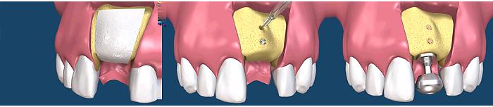 этапы подсадки кости