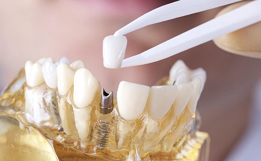 установка зубной коронки