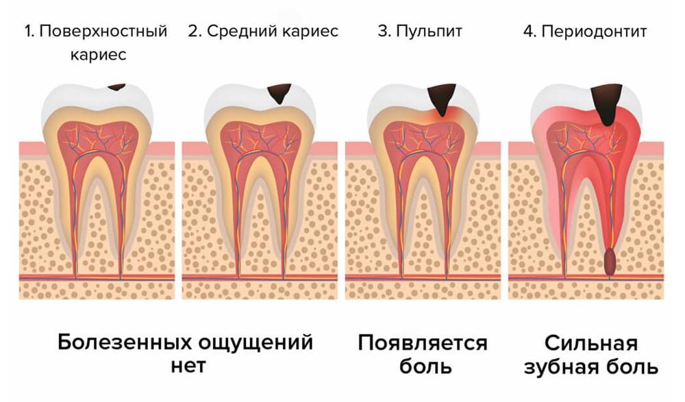 стадии периодонтита