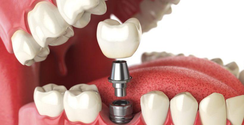 Вся правда об имплантации зубов
