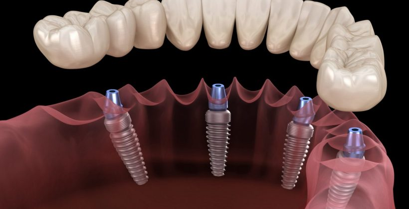 Разновидности зубных имплантов и их особенности
